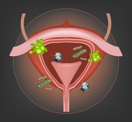 Menselijke blaas met bacteriën en ziektekiemen. Vector illustratie