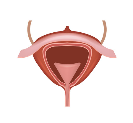 bladder surgery: Human bladder vector illustration