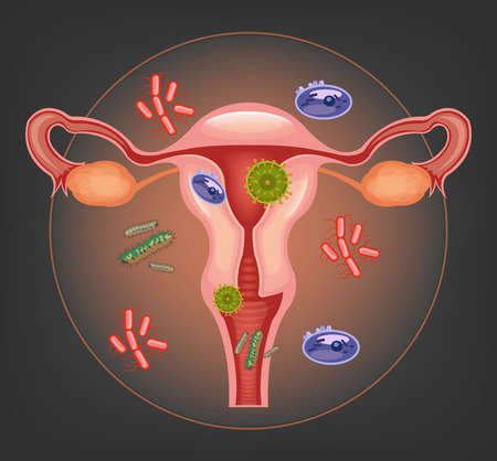 woman vagina: Ill female reproductive system. Vector illustration
