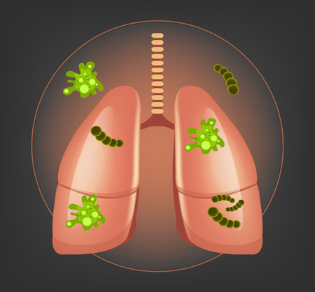 cavities: Lungs with germs and bacteria. Vector illustration