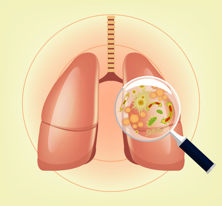 pneumonia: Lungs with germs and bacteria and magnifier. Vector illustration