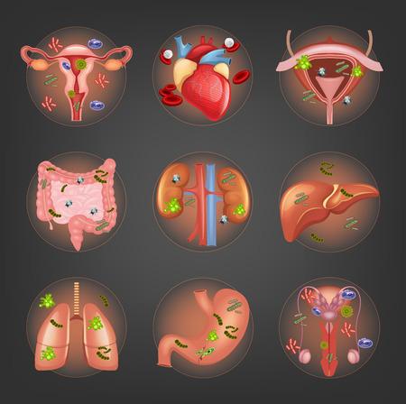 anatomia humana: Vector órganos internos enfermos establecen Vectores