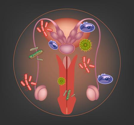 apparato riproduttore: Sistema riproduttivo maschile malato. Illustrazione vettoriale