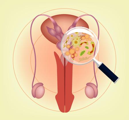 testiculos: Hombre sistema reproductivo enfermo con lupa. Ilustración vectorial