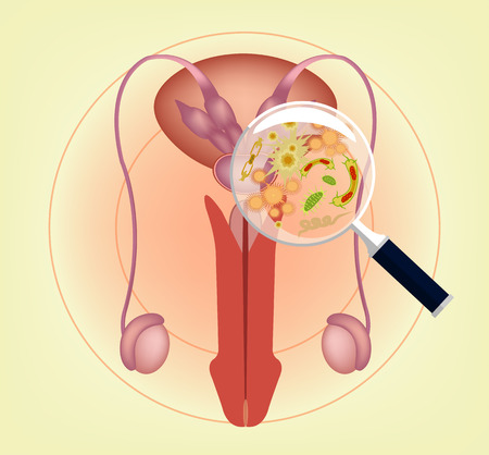 testes: Male ill reproductive system with magnifier. Vector illustration