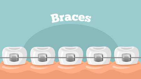 teeth braces flat illustration