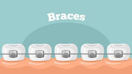 braces: teeth braces flat illustration