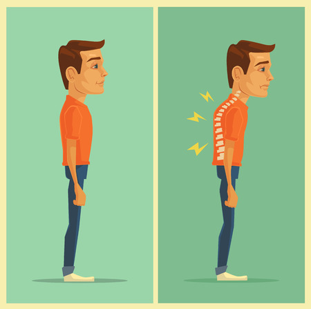 deformity: Right and wrong posture. Vector flat illustration
