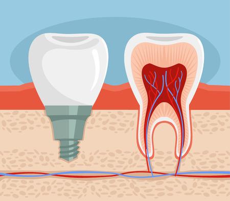 implanted: Dental implant. Vector flat illustration