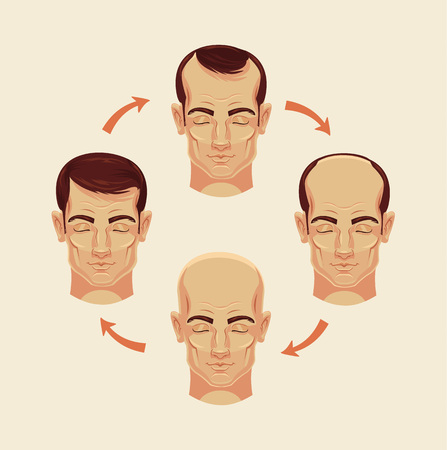 shaved head: Stages of baldness. Vector flat cartoon illustration Illustration