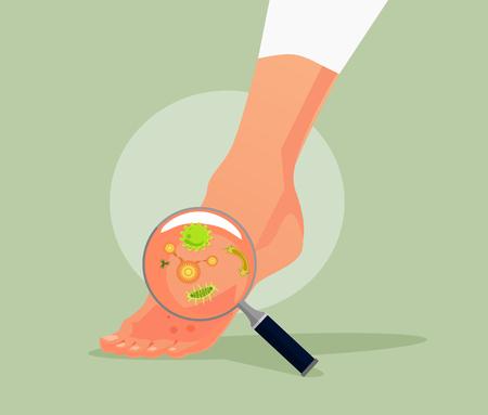 Flache Karikaturillustration des Fußpilzvektors Vektorgrafik