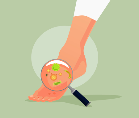 Foot fungus Vector flat cartoon illustration