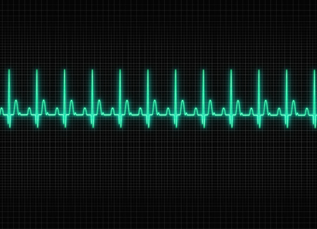 sine: a electrocardiography illustration in dark screen background