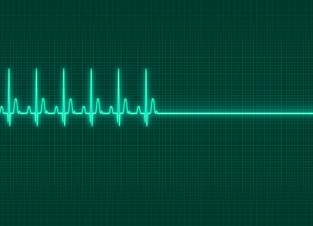exitus: a electrocardiography exitus illustration in dark screen background Stock Photo