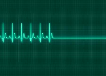 electrocardiograma: una ilustración electrocardiografía exitus en el fondo de la pantalla oscura Foto de archivo