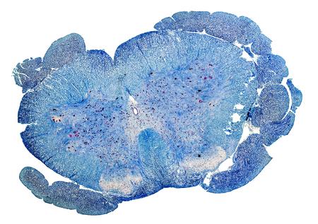 medula espinal: azul microscópica sección transversal de un color de la médula espinal de una rata Foto de archivo