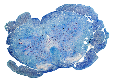 spinal cord: blue colored microscopic cross section of a spinal cord from a rat Stock Photo
