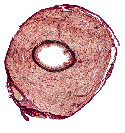 deferens: microscopic cross section showing the vas deferens of a rat