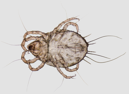 arachnida: microscopic shot showing a house dust mite