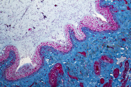 urinary bladder: micrograph showing a urinary bladder detail from a rat