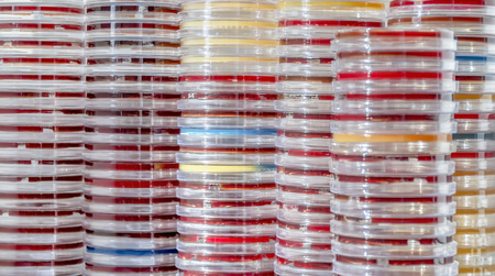 Full frame abstract shot showing lots of stacked petri dishes filled with colorful agar growth medium Standard-Bild - 115382107