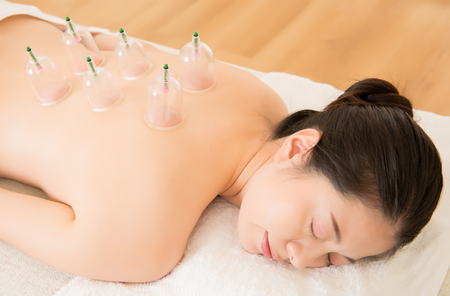 beautiful asian chinese woman laying on chest with cupping treatment on back and closed eyes in Chinese medicine clinic indoor. medical and health concept. Stock fotó