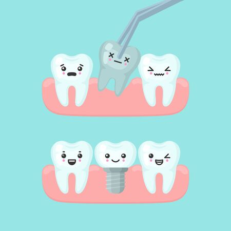 Tooth extraction and implantation stomatology concept. Cute cartoon vector teeth implant isolated illustration