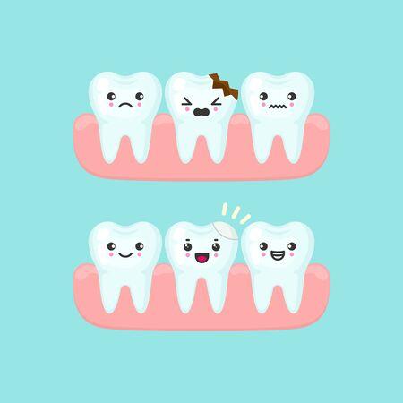 Dental filling on a broken tooth stomatology concept. Cute cartoon vector teeth isolated illustration