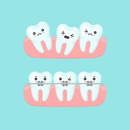 Braces alignment stomatology concept. Cute cartoon vector teeth isolated illustration Illusztráció
