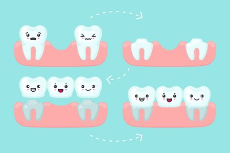 Dental bridge setting, stomatology vector concept illustration. Procedure of implant veneer with one artificial tooth