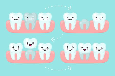 Dental crown setting, stomatology vector concept illustration. Procedure of implant veneer with one artificial tooth