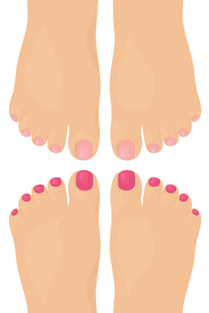 toenail: Bare feet with nail varnish. Illustration