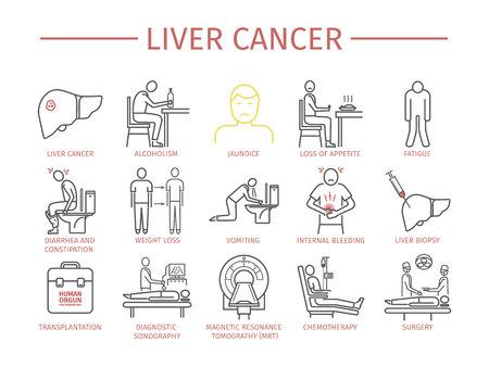 Liver Cencer Symptoms Stock Photo