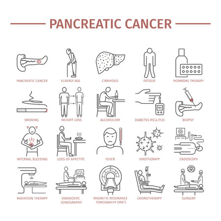 Pancreatic Pancreas Cancer Symptoms. Causes.