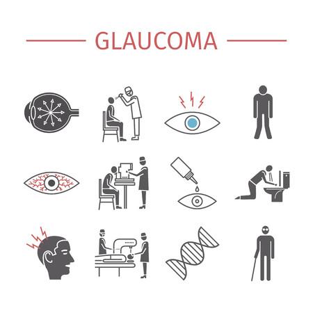 Glaucoma. Síntomas, tratamiento. Iconos planos establecidos. Signos de vectores