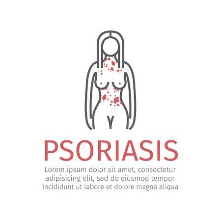 Psoriasis. Vector icono Foto de archivo - 83487342