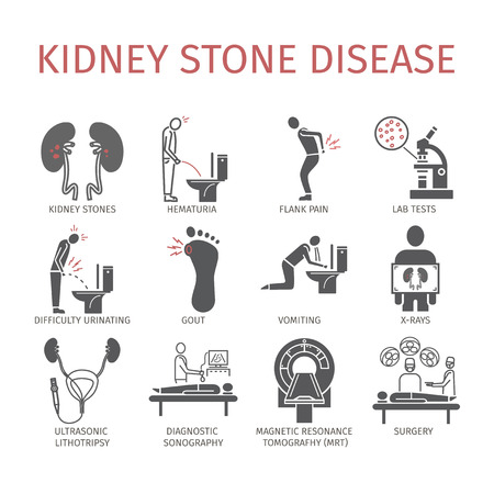 Diagram of kidney stones symptoms electrical wiring diagram kidney stone icons pictogram and diagrams depict signs symptoms rh 123rf com kidney stone disease symptoms symptoms of kidney problems ccuart Images