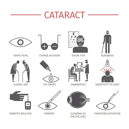 Cataract. Symptoms, Treatment. Icons set. Vector signs Ilustracja