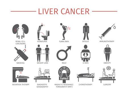 Los síntomas del cáncer de riñón, las causas, los iconos planos de diagnóstico establecen signos vectoriales para gráficos web.