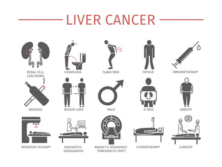 Kidney cancer symptoms, causes, diagnostics flat icons set vector signs for web graphics.