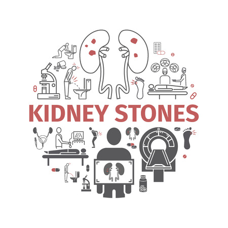 Kidney stones banner. Symptoms, Treatment. Line icons set. Vector signs for web graphics. Vector Illustration
