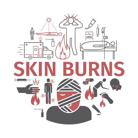 Skinl Burns kine banner. Treatment. Vector illustrations Illustration