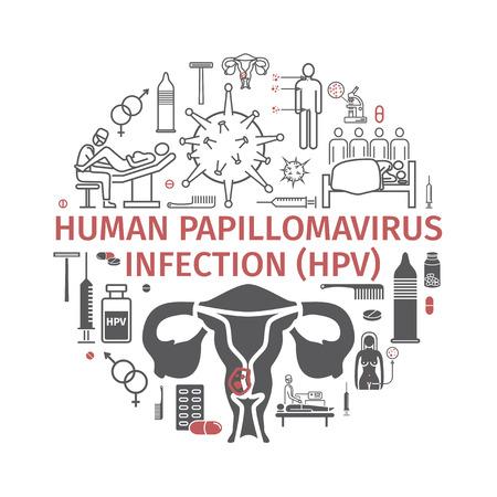 Human papillomavirus infection HPV.