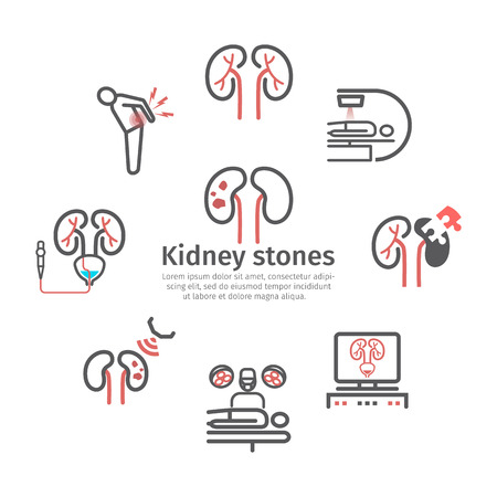 Kidney stones. Symptoms, Treatment. Line icons set. Vector signs for web graphics