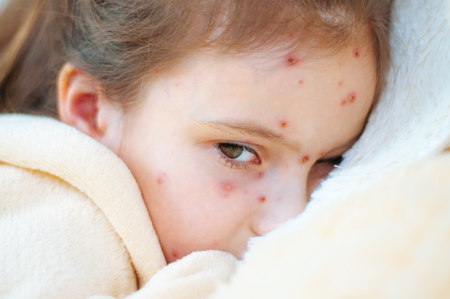 Closeup of cute sad little girl in bed. Varicella virus or Chickenpox bubble rash on child