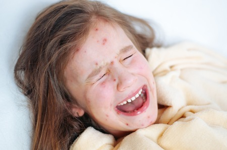 Closeup of cute sad crying little girl in bed. Varicella virus or Chickenpox bubble rash on child