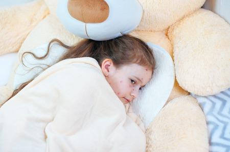 Gros plan d'une mignonne petite fille triste au lit. Virus de la varicelle ou éruption de bulles de varicelle chez l'enfant