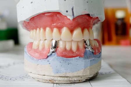 molares: Dental de fondo: el trabajo en la cl�nica (operaci�n, los dientes de reemplazo)