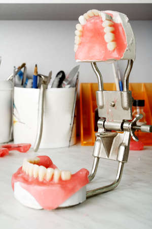 gingivitis: Dental background: work in clinic (operation, tooth replacement)