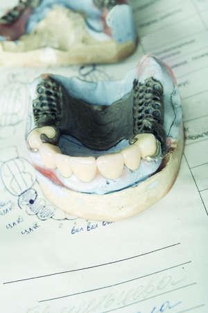molares: Odontolog�a de fondo: el trabajo en la cl�nica (operaci�n, los dientes de reemplazo)